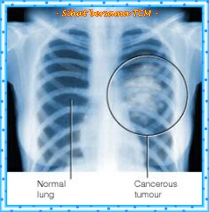 lung_cancer_xray (1)