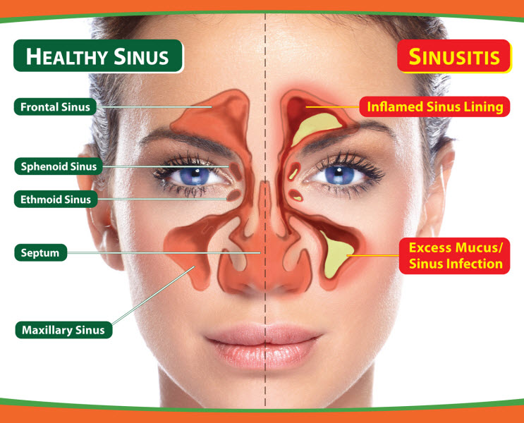 treat-sinusitis