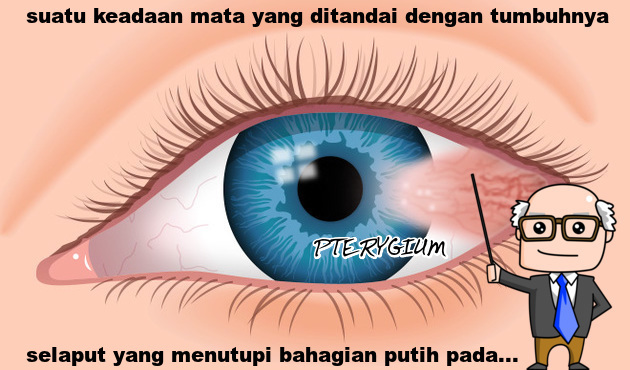 tcm approach on treating pterygium Acupuncture today is a leading provider of acupuncture and acupuncture and traditional chinese medical approaches for the six-step treatment approach.